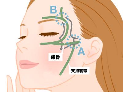 頬骨周囲の支持靱帯と注入ポイント