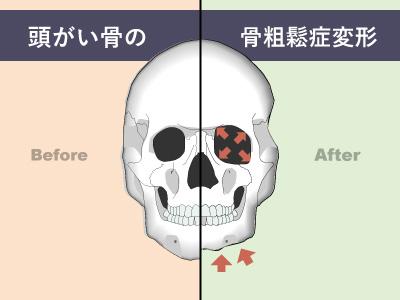 頭蓋骨の骨粗鬆症