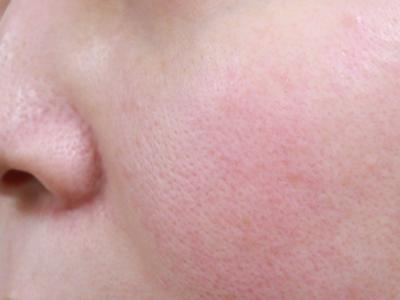 治療前 左頬