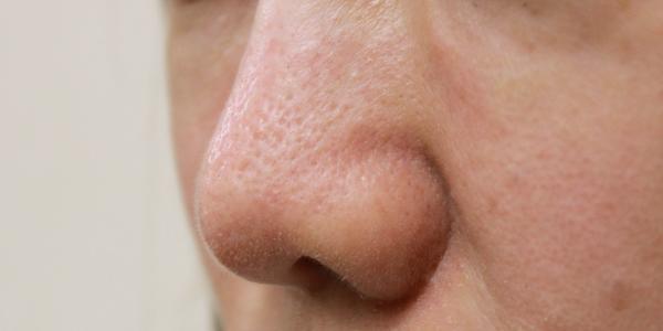 鼻の毛穴治療前