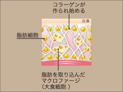脂肪溶解注射作用機序3