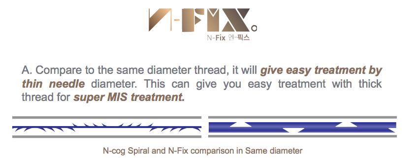 N-FIXの特徴