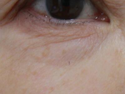 右下眼瞼術前